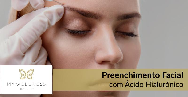 Preenchimento Facial com Ácido Hialurónico -