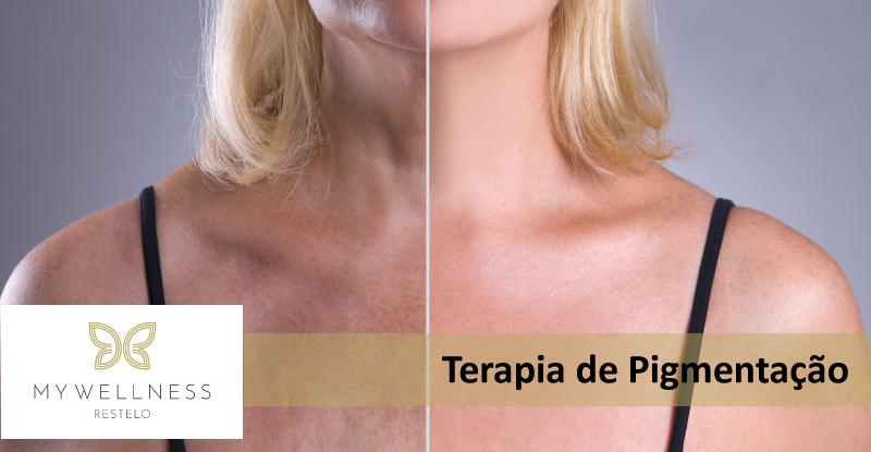 Terapia de Pigmentação